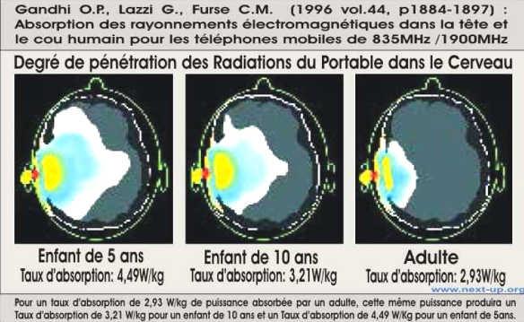 Degré de pénétration des radiations du portable dans le cerveau